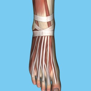 foot drop deformity in patients with Friedreich's Ataxia