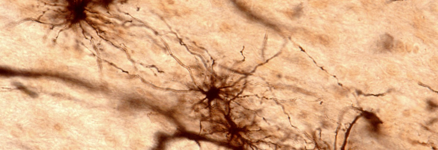 New Evidence Shows Involvement of Glial Cells in Friedreich's Ataxia