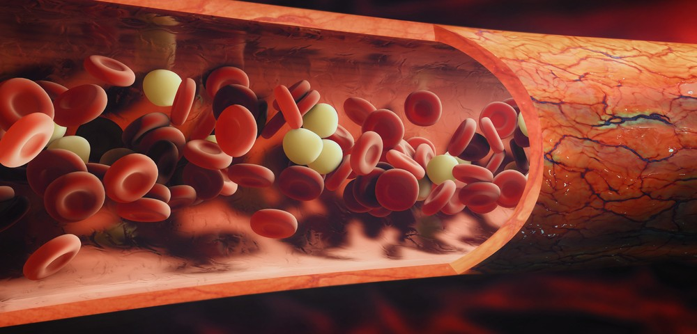 Metabolic Alterations Found in Platelets of FA Patients May Serve as Therapeutic Biomarkers
