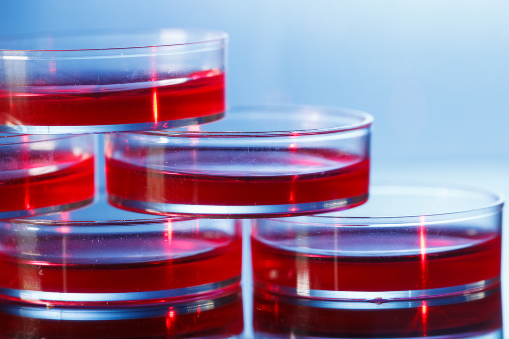 Heart cells grown from induced pluripotent stem cells needed to advance understanding of Friedreich ataxia heart disease.