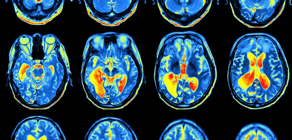 Comprehensive MRI-based Study Reveals Brain Changes Linked to Friedreich's Ataxia