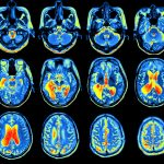 MRI-based study, brain changes